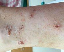小腿上起的干性结痂样的湿疹图片