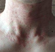 脖子上起的红疹样湿疹图片