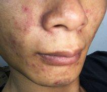 男子面部过敏性湿疹图片
