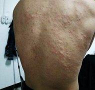 身上起的荨麻疹样湿疹图片