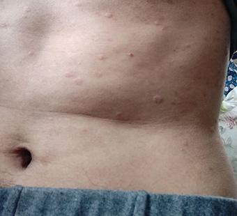 阴囊上有小疙瘩图片_身上起结节性疹样的湿疹图片_身上湿疹图片_湿疹图片大全