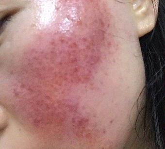 皲裂性湿疹症状_大面积干痒发红的过敏湿疹图片_面部湿疹图片_湿疹图片大全
