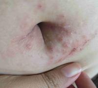 脐周上起的丘疹样湿疹图片