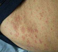 身上干燥性红疹样湿疹图片
