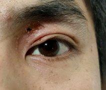 眼皮上起的一处干性湿疹图片