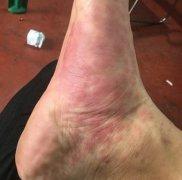 脚底侧大块发红的过敏湿疹图片