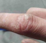 指背关节上起的干燥性湿疹图片