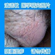 起痘痘红润的阴囊湿疹图片