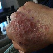 手背增生长泡的湿疹图片