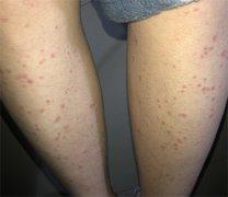 双腿部多发小红疹样湿疹图片