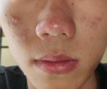 鼻头起脓头瘙痒的湿疹图片