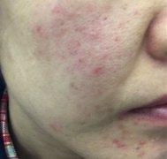 敏感起红疹的过敏湿疹图片