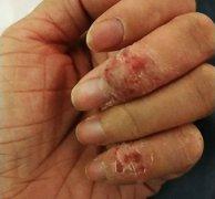 授课老师得的手湿疹图片