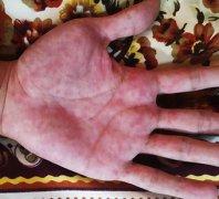 手热出暗斑的手湿疹图片