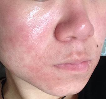 皲裂性湿疹症状_敏感肌发干发烫的湿疹图片_面部湿疹图片_湿疹图片大全