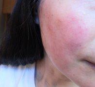 难受的激素依赖性皮炎湿疹图片