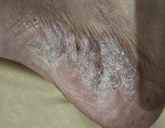 脚底侧白色起皮的湿疹图片