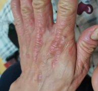手部角化增厚的湿疹图片