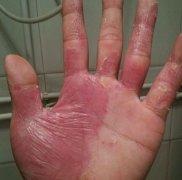 皮肤薄发红的手部湿疹图片