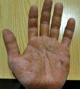 全掌角化增厚的手湿疹图片