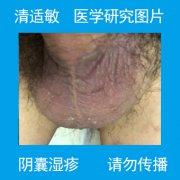 阴囊干痒发热的阴囊湿疹图片