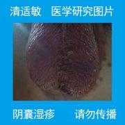 皮肤完全剥落的阴囊湿疹图片
