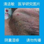 长红疙瘩很痒的阴囊湿疹图片