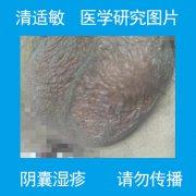 阴囊薄痒潮湿的阴囊湿疹图片