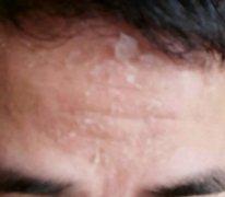 额头脱白皮痒的湿疹图片