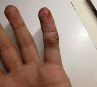 手指头严重的汗疱疹湿疹图片