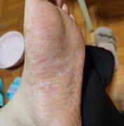 脚底大面积脱皮的湿疹图片