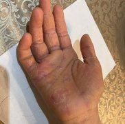 8岁小朋友手湿疹图片