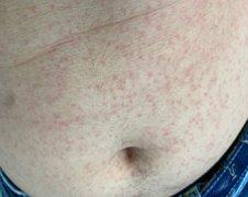 肚皮上起多个红疙瘩湿疹图片