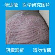 全囊皮肤发干发白的阴囊湿疹图片