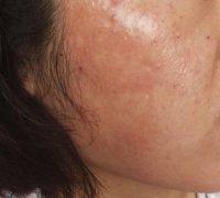 敏感肌黄皮肤的湿疹图片