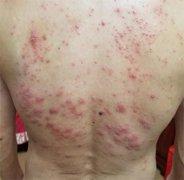 后背布满大红疙瘩的湿疹图片