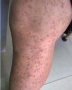 大腿上起连片颗粒状湿疹图片