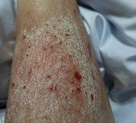 腿上大块白皮炎湿疹图片