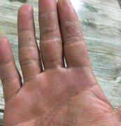 皮肤干燥角化严重的湿疹图片