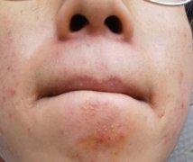 下巴结黄痂起疙瘩湿疹图片