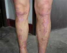 双腿上牛皮癣样的湿疹图片