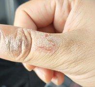 大拇指上一块干性皮炎性湿疹图片