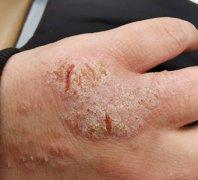 手背关节开裂干疼的手湿疹图片